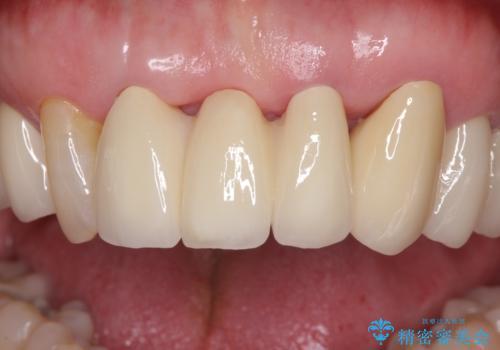 矯正治療と歯周外科処置を併用した審美歯科治療の治療後