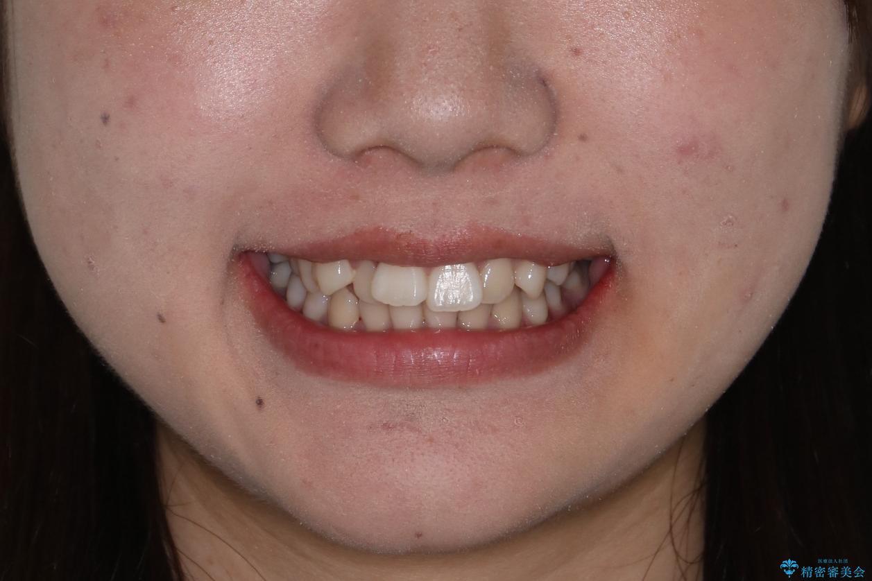 笑顔がきれいになった。抜歯矯正(審美装置)の治療前(顔貌)