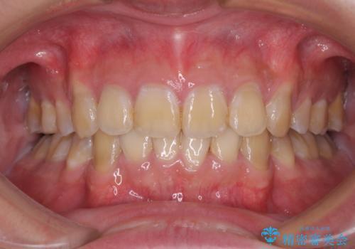 口元の突出感と叢生 ワイヤー装置による抜歯矯正の治療後