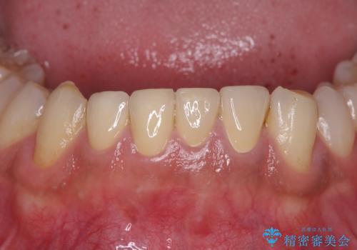 すり減ってしまった前歯 セラミッククラウンで自然な形にの治療後