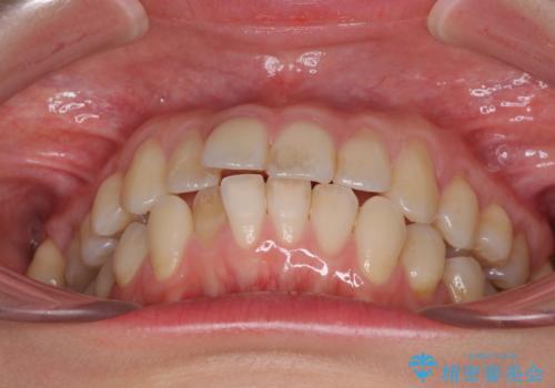 前歯のデコボコを治したい インビザラインによる矯正治療の治療前