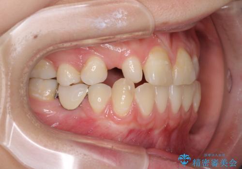 欠損と残存乳歯 矯正治療とインプラント治療の治療前
