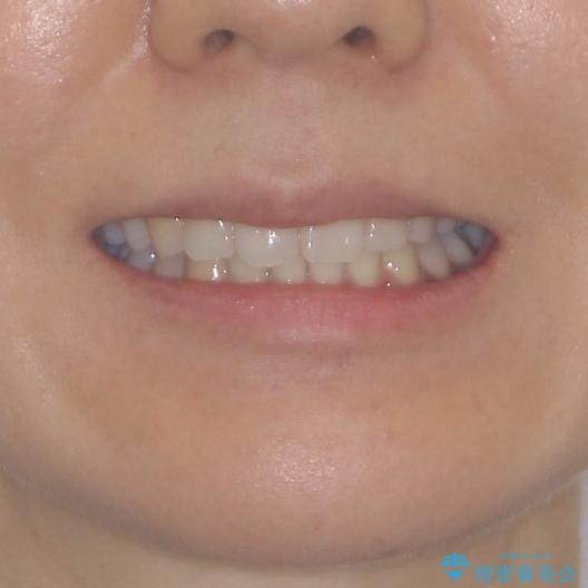 抜歯矯正の後戻り インビザラインによる再矯正治療の治療後(顔貌)