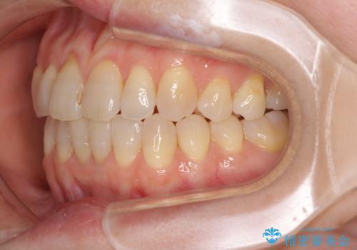 前歯の叢生と切端咬合 インビザラインによる矯正治療の治療中