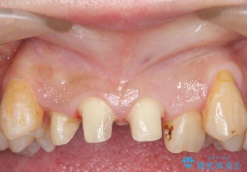オールセラミッククラウン 長期間放置してきた前歯の虫歯治療の治療中