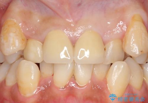 オールセラミッククラウン 長期間放置してきた前歯の虫歯治療の治療後