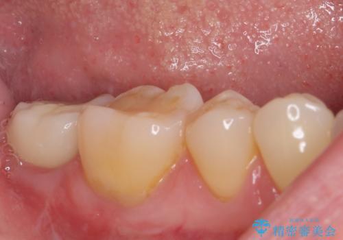 抜歯されたままの奥歯 ストローマンインプラントによる欠損補綴治療の治療後