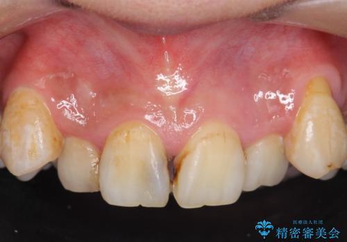オールセラミッククラウン 長期間放置してきた前歯の虫歯治療の治療前