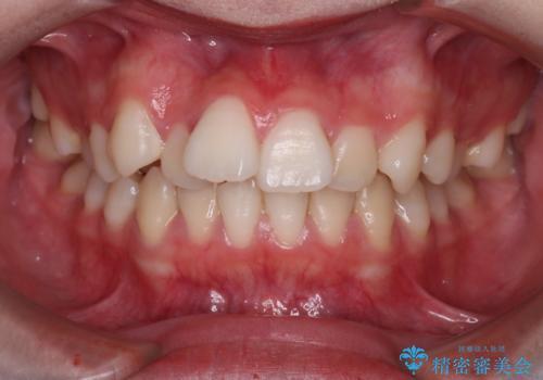 笑顔がきれいになった。抜歯矯正(審美装置)の治療前