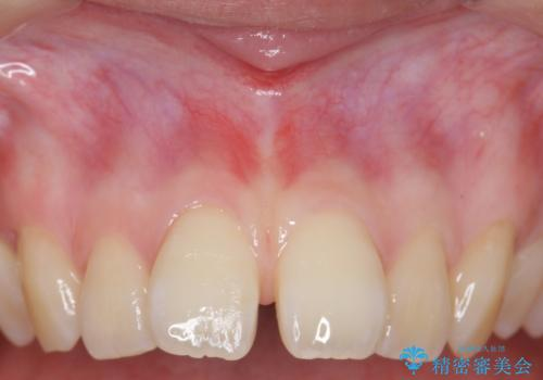 上唇小帯切除 矯正前の予防的処置の治療後