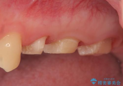 オールセラミッククラウン 痛みでものが咬めない歯の治療の治療中