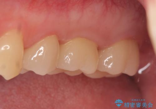 オールセラミッククラウン 痛みでものが咬めない歯の治療の治療後