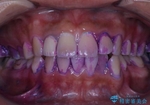 10年ぶりの歯科医院への来院の治療前