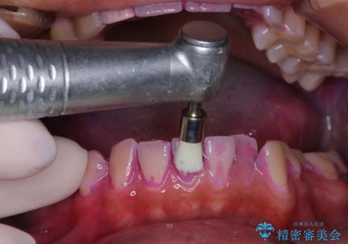 10年ぶりの歯科医院への来院の治療中