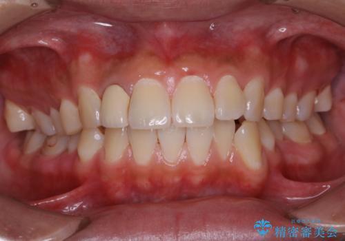 10年ぶりの歯科医院への来院の症例 治療後