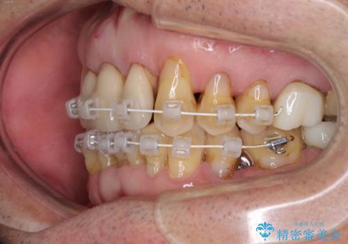 矯正治療と歯周外科処置を併用した審美歯科治療の治療中