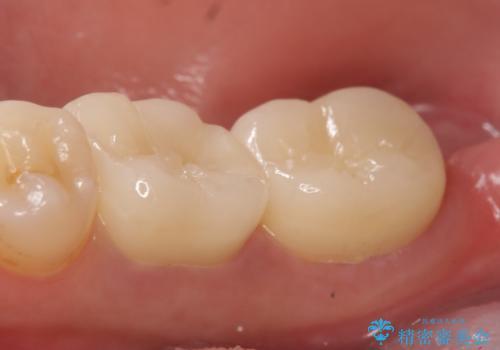 オールセラミッククラウン 欠けてしまった奥歯の治療の治療後