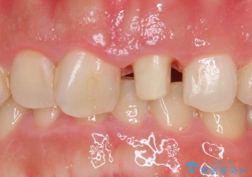 オールセラミッククラウン 長さが気になる前歯の改善の治療中