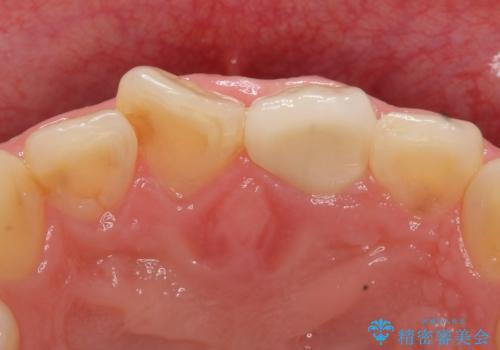 オールセラミッククラウン 長さが気になる前歯の改善の治療後