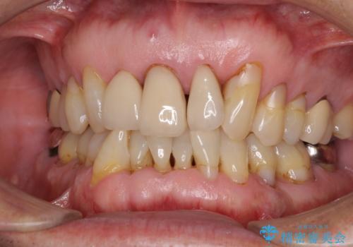 矯正治療と歯周外科処置を併用した審美歯科治療の症例 治療前