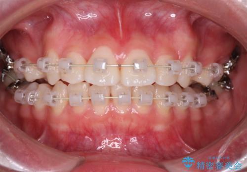 笑顔がきれいになった。抜歯矯正(審美装置)の治療中