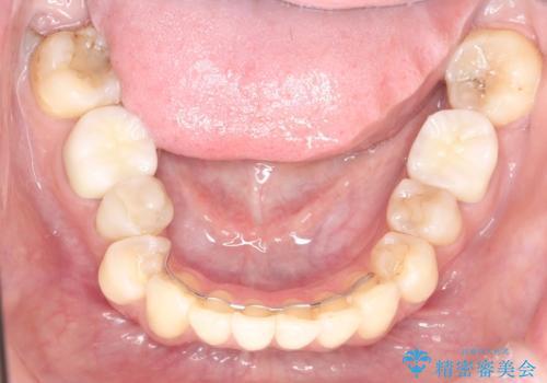 目立つ銀歯を白くしたい セラミック治療の症例 治療後