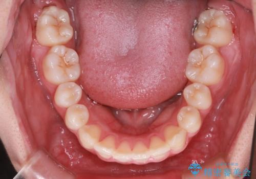 笑顔がきれいになった。抜歯矯正(審美装置)の治療後