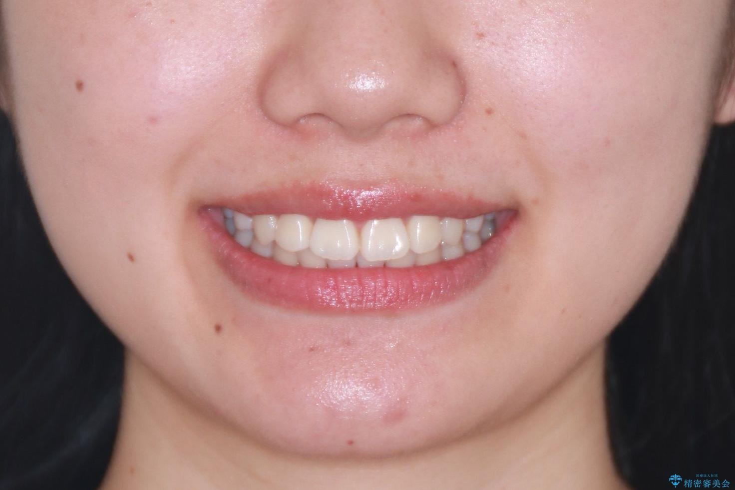 笑顔がきれいになった。抜歯矯正(審美装置)の治療後(顔貌)