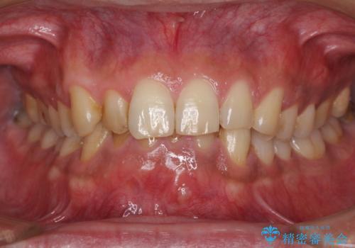 すり減ってしまった前歯 セラミッククラウンで自然な形にの治療前