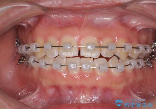 前歯の隙間を閉じたい 短期間でのワイヤー矯正の治療中