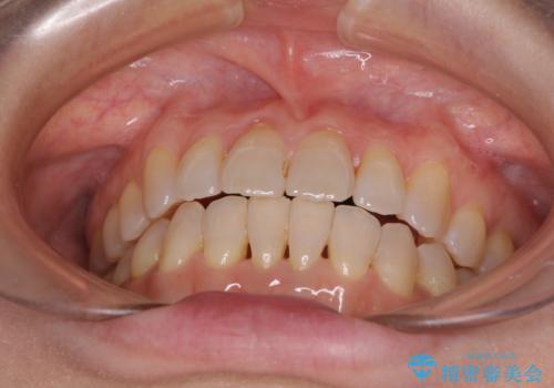 前歯の叢生と切端咬合 インビザラインによる矯正治療の治療後