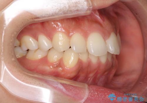 抜歯矯正の後戻り インビザラインによる再矯正治療の治療前