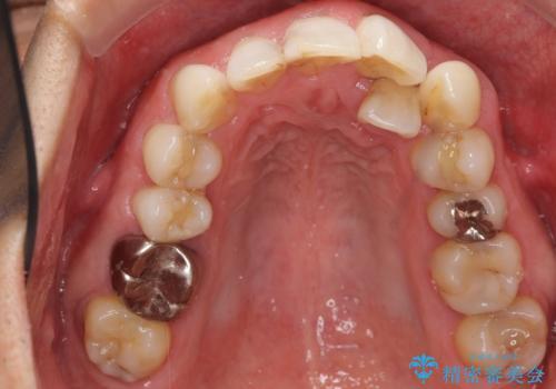 歯並びをきれいにしたい、歯を真っ白にしたい 40代男性の治療前