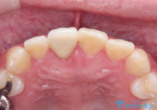 インビザラインにて矯正治療後の前歯のセラミッククラウン治療の治療後