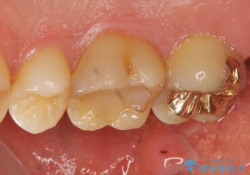 奥歯のゴールドインレーによる虫歯治療の症例 治療前