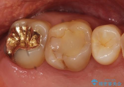 奥歯のゴールドインレーによる虫歯治療の治療前
