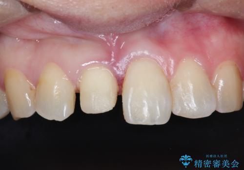 インビザラインにて矯正治療後の前歯のセラミッククラウン治療の治療中
