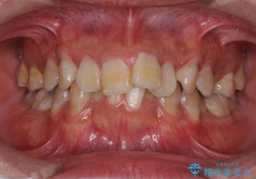 口元の突出感と叢生 ワイヤー装置による抜歯矯正の治療前