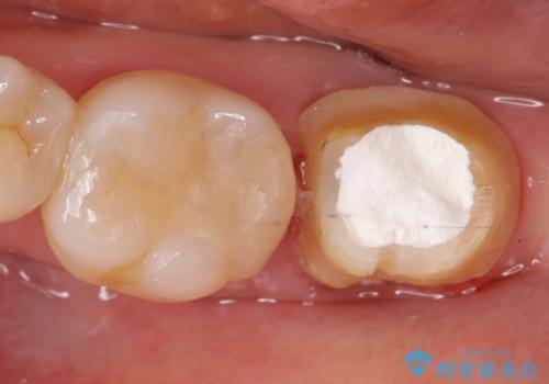 オールセラミッククラウン 痛みが引かない歯の治療の治療前