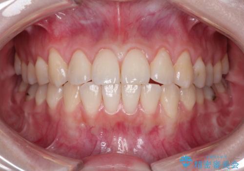 前歯の歯肉退縮 歯周形成外科(歯冠側移動術)の治療前