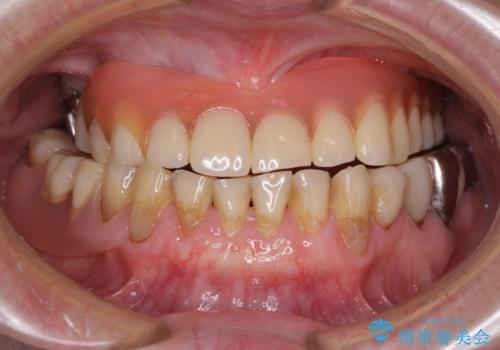 前歯の歯肉退縮 歯肉移植による根面被覆の治療後