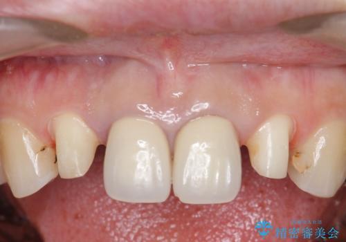 オールセラミッククラウン 前歯の劣化した古い樹脂をセラミックにの治療中