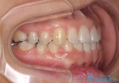 前歯の隙間を閉じたい 短期間でのワイヤー矯正の治療後