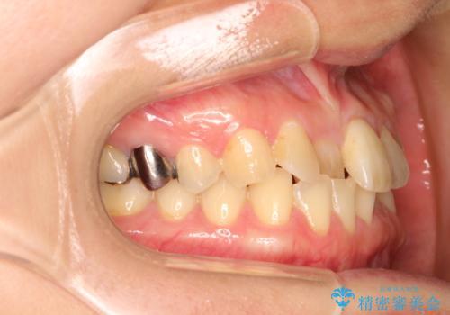 インビザラインにて矯正治療後の前歯のセラミッククラウン治療の治療前