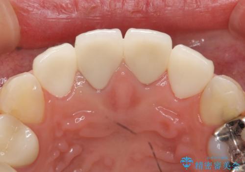 オールセラミッククラウン 前歯の劣化した古い樹脂をセラミックにの治療後