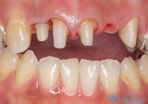 オールセラミッククラウン 気になる歯茎と被せ物の隙間の改善の治療中