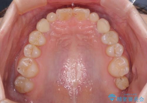 欠損と残存乳歯 矯正治療とインプラント治療の治療後