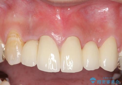 オールセラミッククラウン 気になる歯茎と被せ物の隙間の改善の治療後