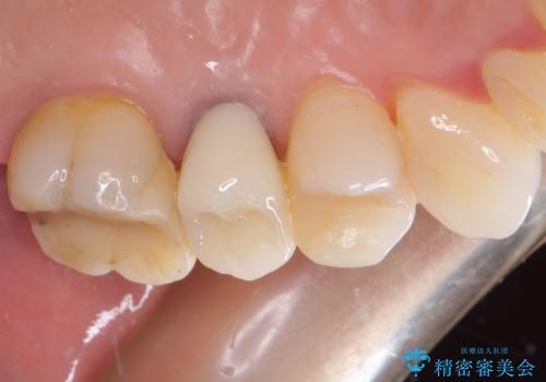 歯肉の退縮により歯根が見える オールセラミッククラウンによる審美歯科治療の治療後