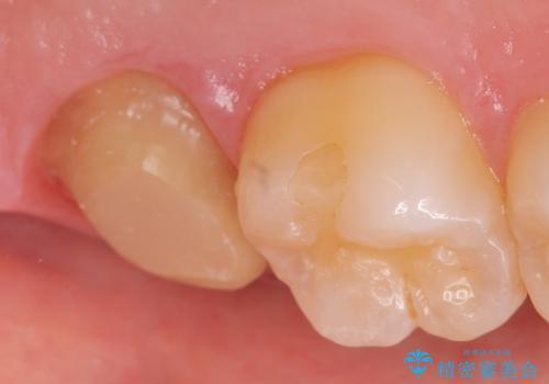 オールセラミッククラウン 痛くて咬めない歯の治療の治療中